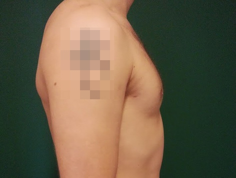 Gynecomastia Abroad After