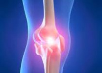 Knee Replacement abroad