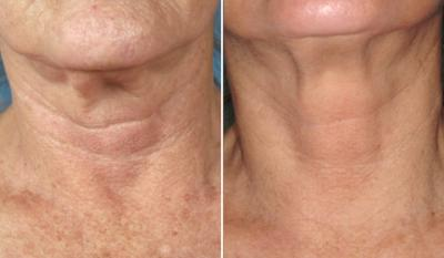 Thermage Skin Lifting