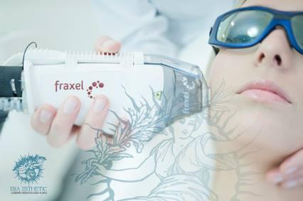 Fraxel Laser Abroad