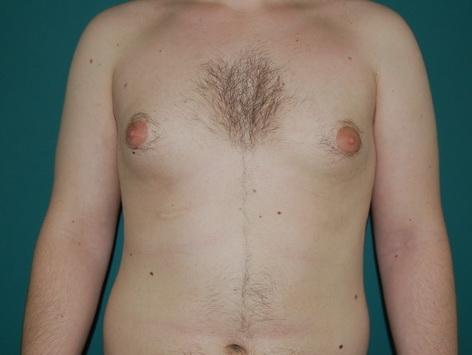 Gynecomastia Abroad