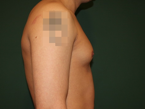 Gynecomastia Abroad Before